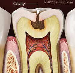 Resorative Dentist