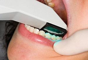 Digital Dental Impressions<span id=