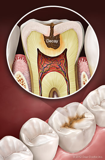 Tooth Decay Treament